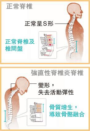 【痛症】正視強直性脊椎炎 戒煙好過亂驗基因