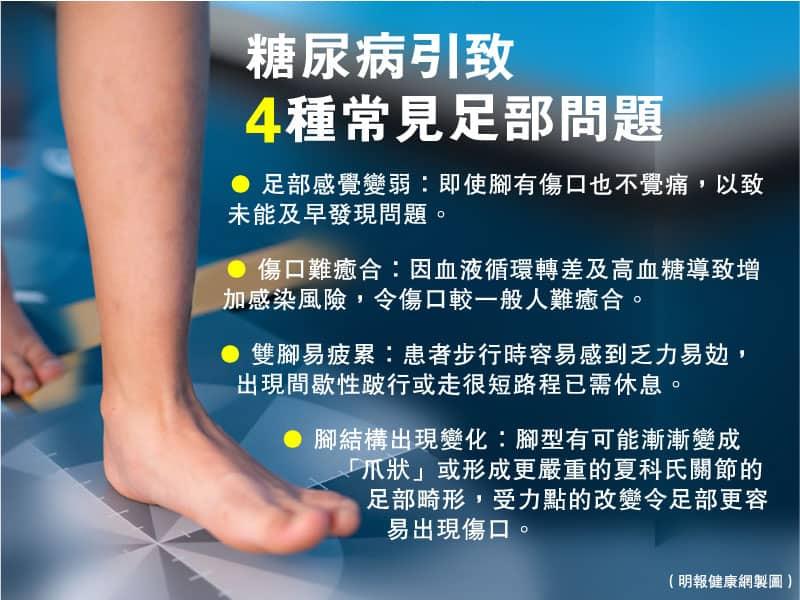 【糖尿病】血糖失控隨時變糖尿足 提防4個警號 日常護理雙腳有法 免爛腳截肢