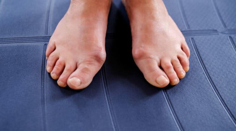 拇趾外翻是先天遺傳或後天壓力?影響外觀兼走路 有疼痛或需手術及早矯正