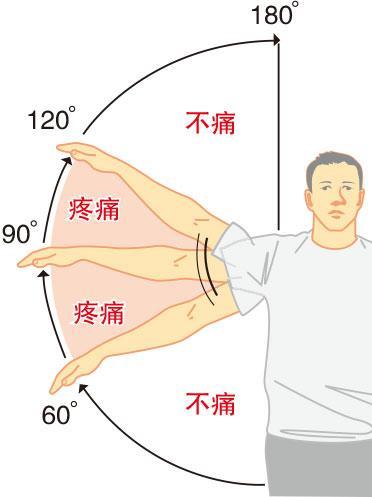 天氣凍 五十肩?筋骨痛症發作?物理治療師教你簡易運動、自行檢測參考