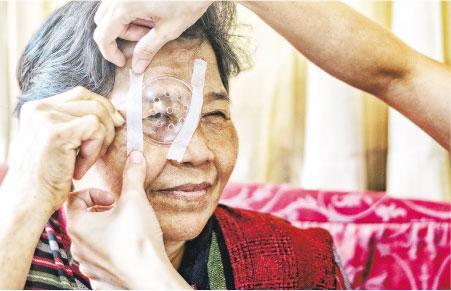 【有片】「鴛鴦眼」矯視非人人適應 白內障手術咪早咪遲