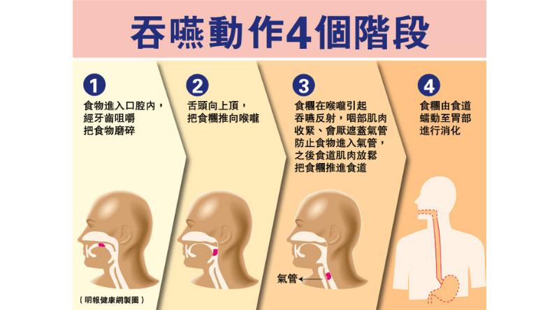 吞嚥困難 經常「濁親」、「落錯格」?了解吞嚥動作4階段 及早處理免致吸入性肺炎