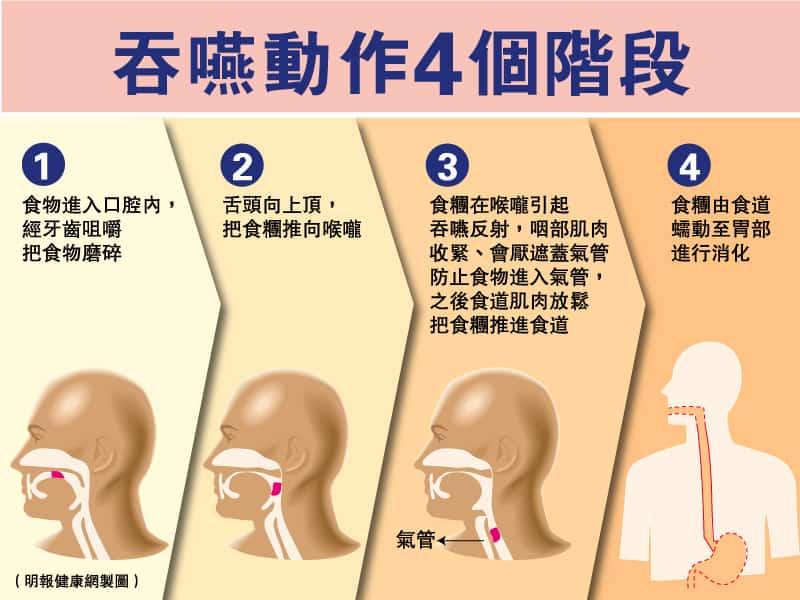 吞嚥困難|經常「濁親」、「落錯格」?了解吞嚥動作4階段 及早處理免致吸入性肺炎