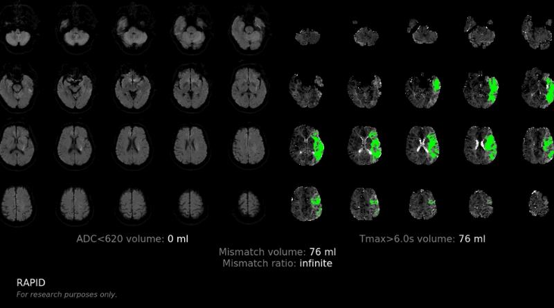 中風|延長急性中風治療黃金3小時 養和醫院應用AI計算可挽救腦組織數量 增嚴重病人康復機會