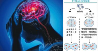 【腦腫瘤】存活期延長 無嚴重副作用 無創「電場」 對付兇惡腦癌