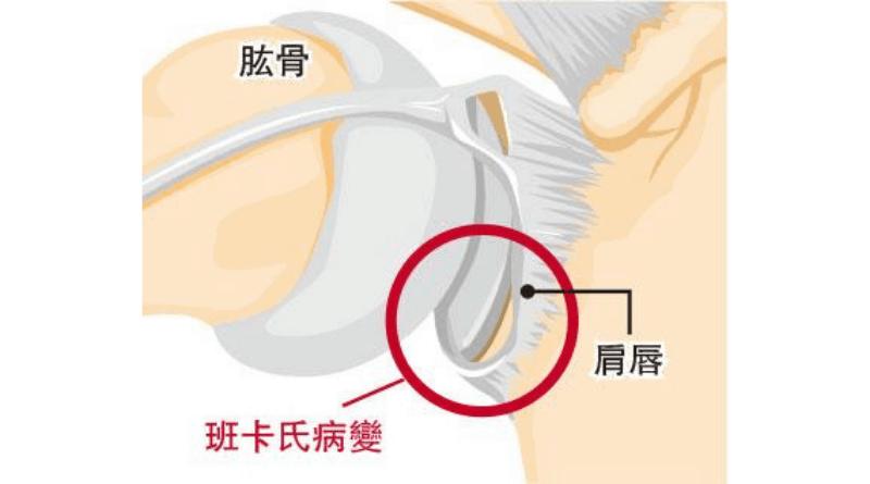 【肩關節脫位】慣性甩骱 伸懶腰都出事? 20歲前受傷 再脫位風險近90%