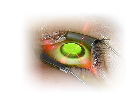 錐形角膜無聲損視力 年輕一族近視、散光不斷加深 眼敏感常捽眼要注意 不同治療方法話你知