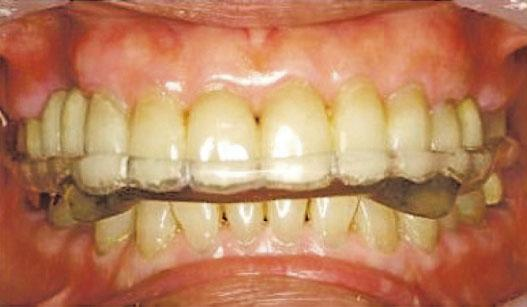 【磨牙】長期磨蝕牙齒礙進食 致牙骱痛、頭痛 磨走琺瑯質增敏感牙齒機會 注意睡眠窒息、壓力響警號