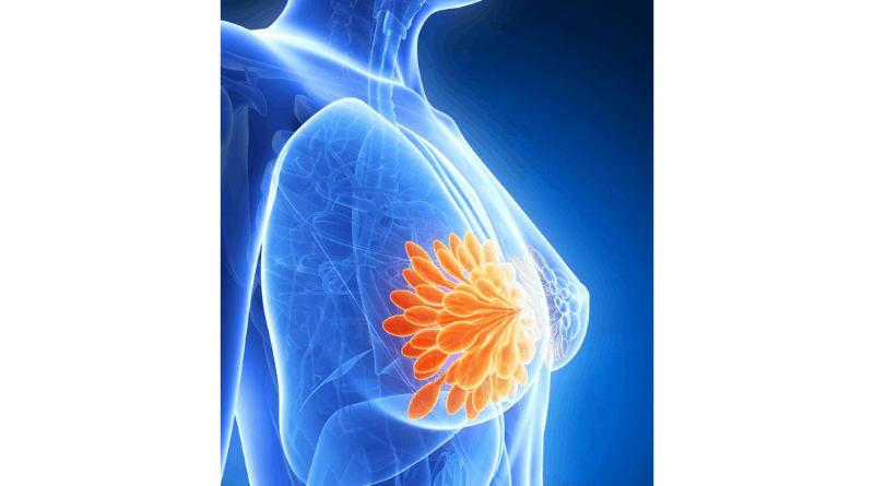 【乳癌】早期徵狀不易察覺 時刻關注乳房健康 留意6個不尋常變化(衛生處方)