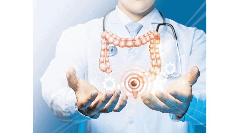 【直腸癌】術前短程電療+化療 可減直腸癌復發