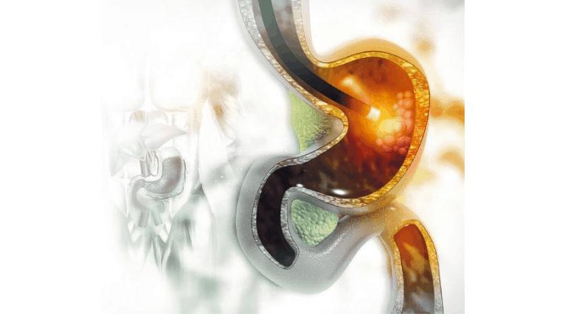 本港胃癌存活率僅四至五成 7個胃癌高危因素 注意幽門螺旋桿菌致胃部長期發炎