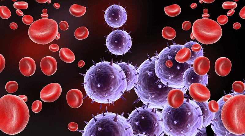 【血癌】廣泛應用基因技術治療血癌(醫言有理)