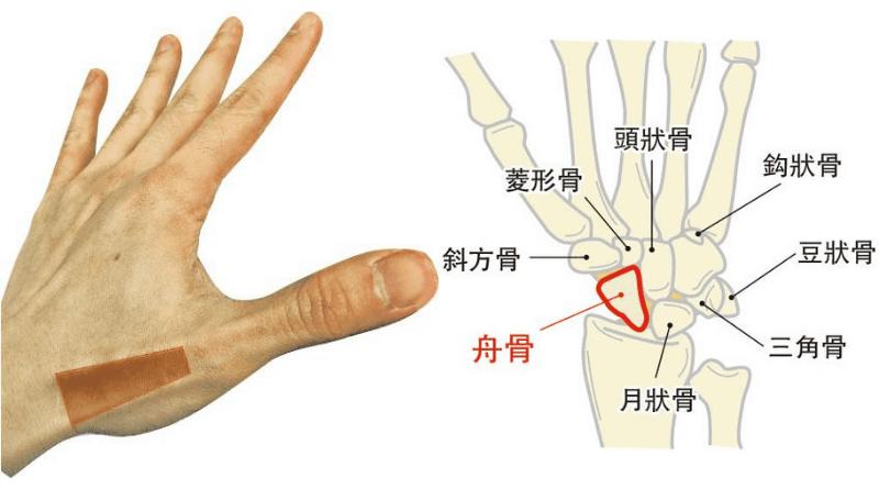 【骨折】手腕「舟骨」骨折病徵不明顯 手腕僵硬難活動