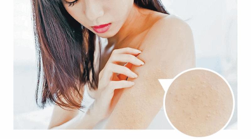 【毛囊角化vs.暗瘡】一乾一油 紅色粒粒皮膚乾燥 毛囊角化莫非基因作怪?難斷尾?
