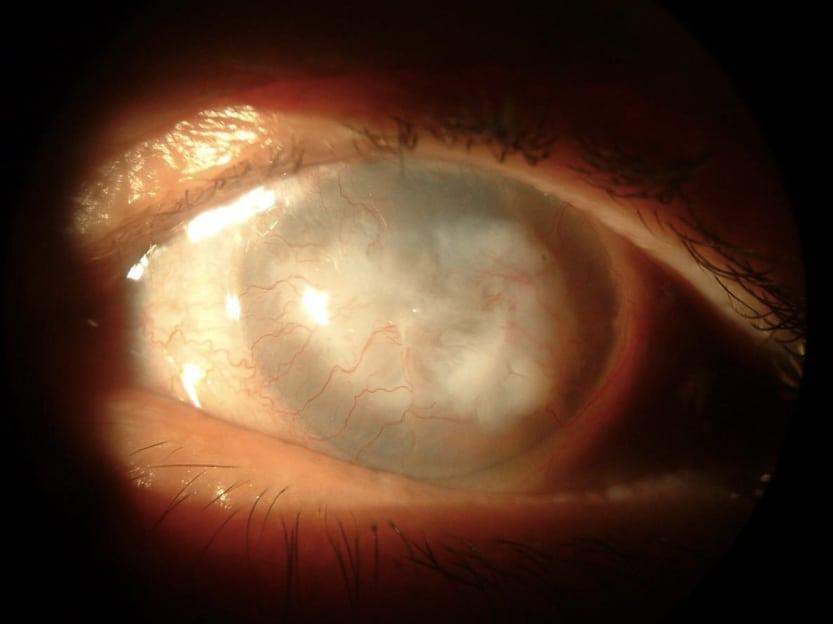 容易受傷的眼角膜 4大原因需角膜移植 手術演變、康復、風險不可不知
