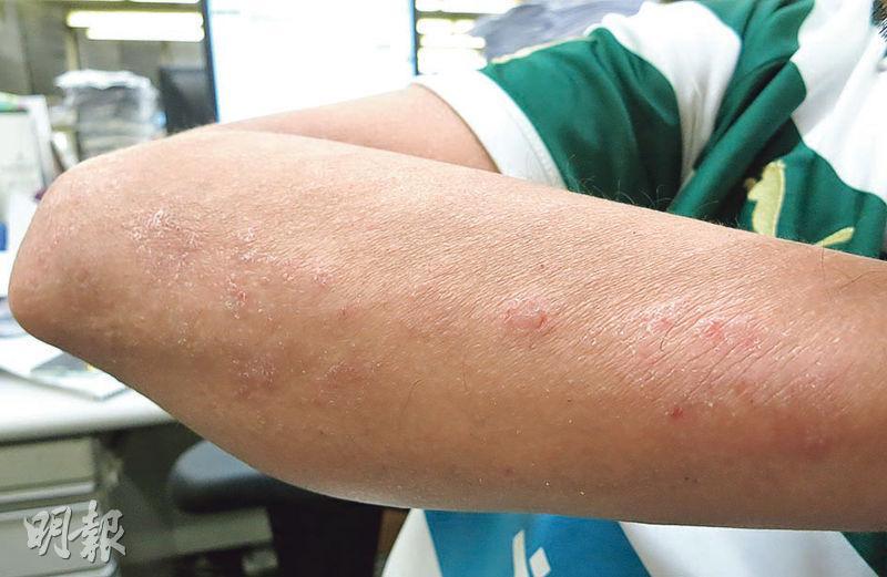 面上紅疹是玫瑰痤瘡定濕疹作怪 5個關於成因、治療、類固醇藥膏的問題