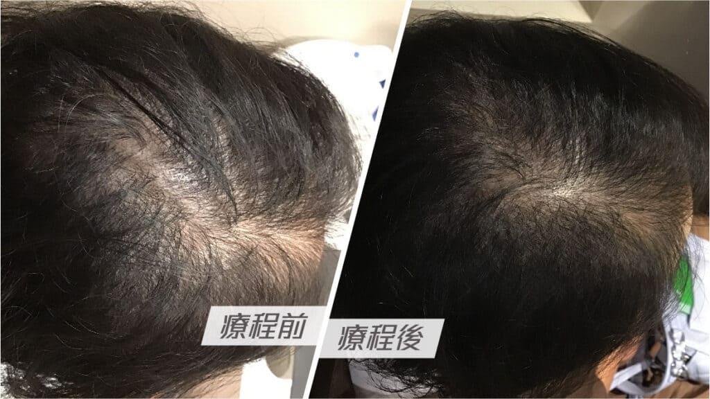 懷孕媽媽產後易脫髮?! 中醫:脫髮關鍵在於血氣不足