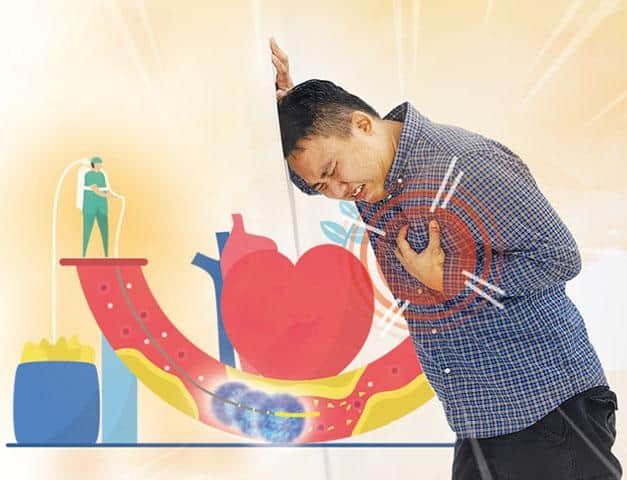 冠心病屬常見心臟病,患者或因心臟血液供應不足而心絞痛。何時才應做手術,開通阻塞的心血管?(設計圖片,模特兒與文中提及疾病無關,tylim、SCI_InDy@iStockphoto)