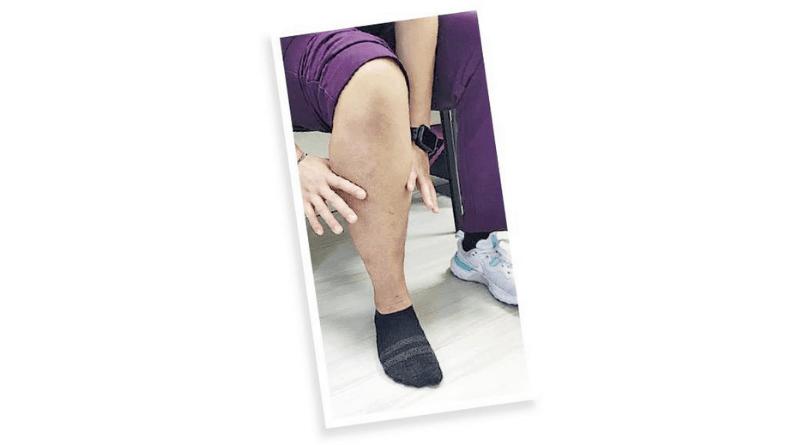 5個問題自我評估肌少症 逆轉有法3個錦囊 改善肌肉量和肌力