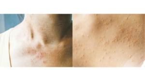 濕疹——濕疹疹塊較大,邊界模糊,表面亦常有脫皮情况。(kitzcorner@iStockphoto)熱痱——熱痱一粒粒分散,常出現於胸口、背脊。(Korneeva_Kristina@iStockphoto)