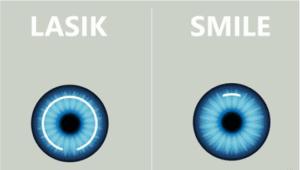 LASIK和SMILE適合不同近視和散光度數的人士,後者的傷口較細,但術後完全恢愎視力的時間較長。(網上圖片)