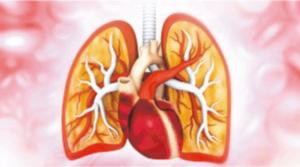 【急性肺栓塞】急性肺栓塞徵狀:突然呼吸困難、胸痛及咳血 殺人不留痕(醫路同行)