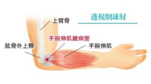 【網球肘】手腕伸肌勞損致病變發炎無力 網球肘5個徵狀 誰是高危一族 4招改善方法