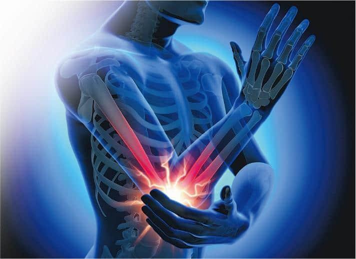 網球肘——筋腱勞損產生病變,出現疼痛、發炎和無力等徵狀,形成網球肘。(peterschreiber.media@iStockphoto)