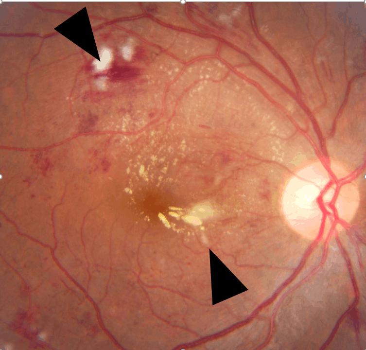一旦糖尿視網膜病變至非常嚴重時,會導致牽拉性視網膜脫落。圖中黑色箭咀所指的是視網膜表面的增殖膜。