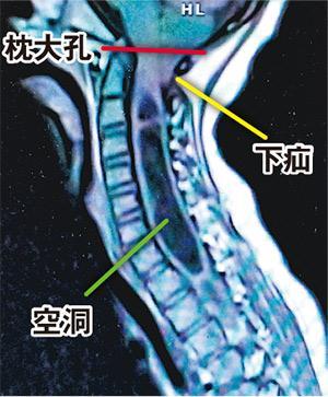 枕大孔:正常小腦不應低於此位置/小腦扁桃體下疝:枕大孔擠迫影響脊髓液流動/脊髓空洞症:脊髓液積聚膨脹,影響神經功能引致脊椎側彎(作者提供)
