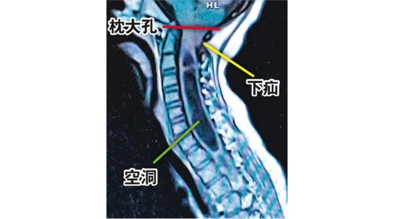 脊柱側彎常見徵狀肩膊不平衡 嚴重可影響心臟和肺 或暗藏小腦病變(醫路同行)