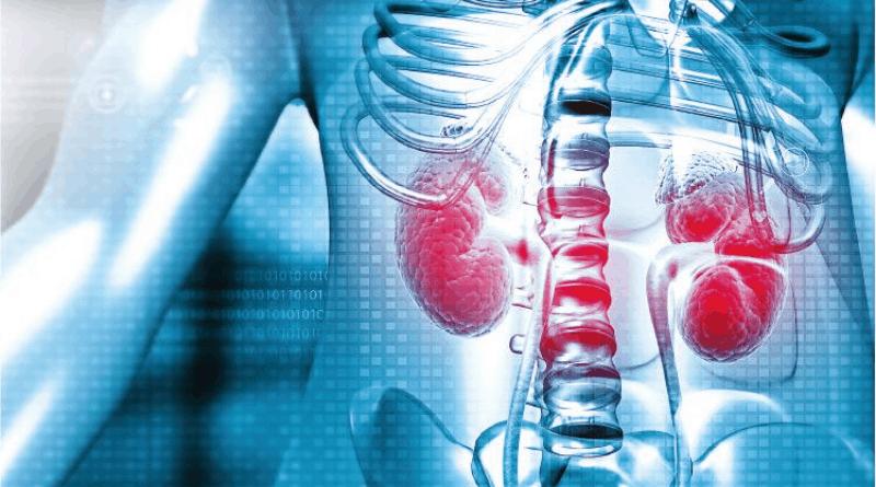 【腎癌】免疫標靶夾攻晚期腎癌 有效率可提升至60%(關於腎癌成因、徵狀和治療的6個問題)