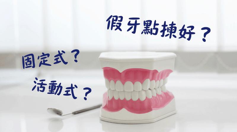 【假牙種類】「固定式」?「活動式」?了解各類型假牙 詳細評估助裝配