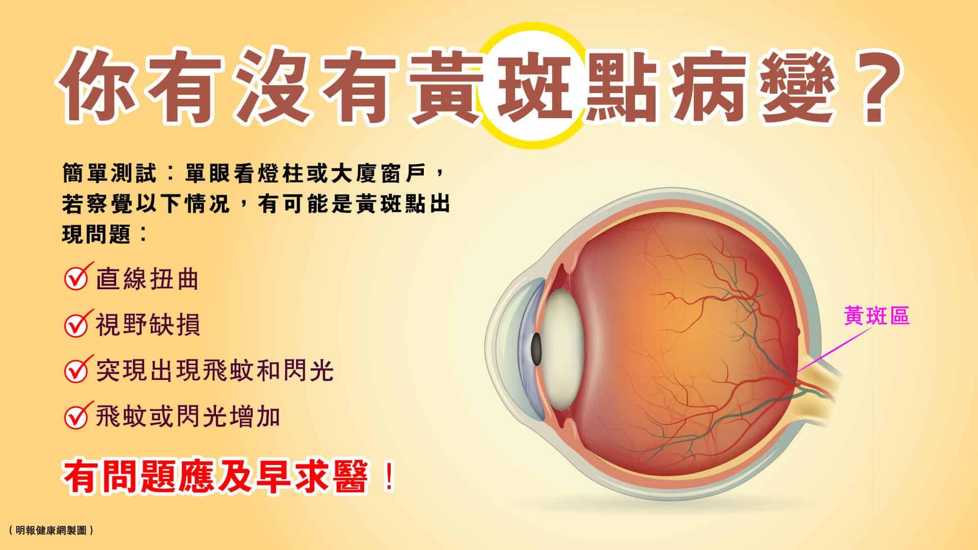黃斑點病變可以導致視力模糊、視力下降、扭曲變形,甚至失明!一旦出現以下情况,應盡快求醫。