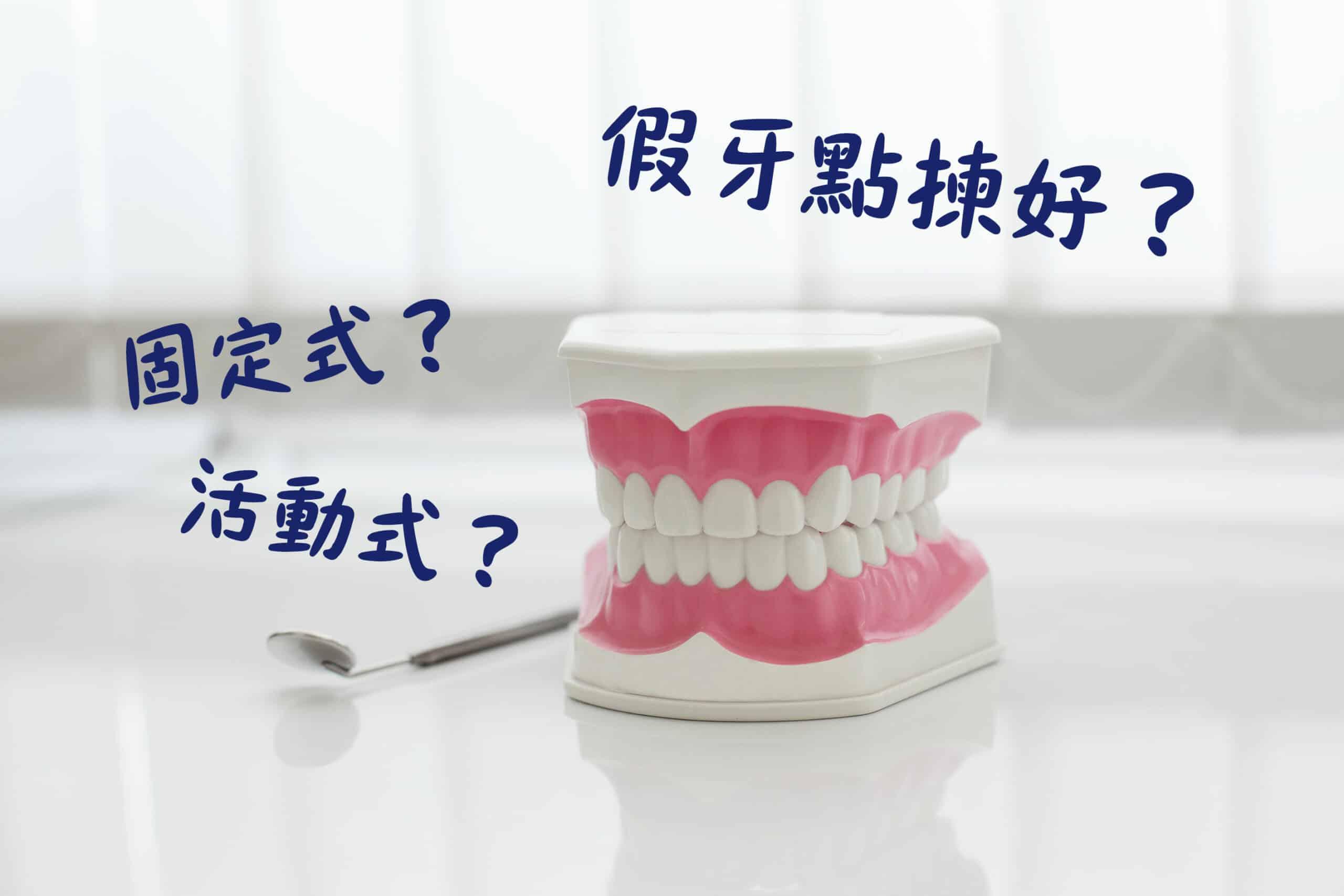 裝配假牙是為了修復缺失牙齒的功能,而假牙大致可分為「固定式」及「活動式」,應如何選擇呢?