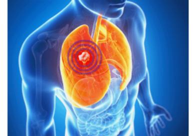 【十大常見癌症】早期肺癌病徵或難察覺 非吸煙患者多患肺腺癌 不同期數多元治療手法